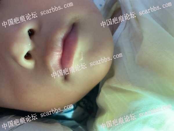 宝宝嘴唇下方磕伤一年了,大家帮我看看怎么办?很着急!
