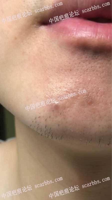 激光点痣后疤痕增生怎么办???