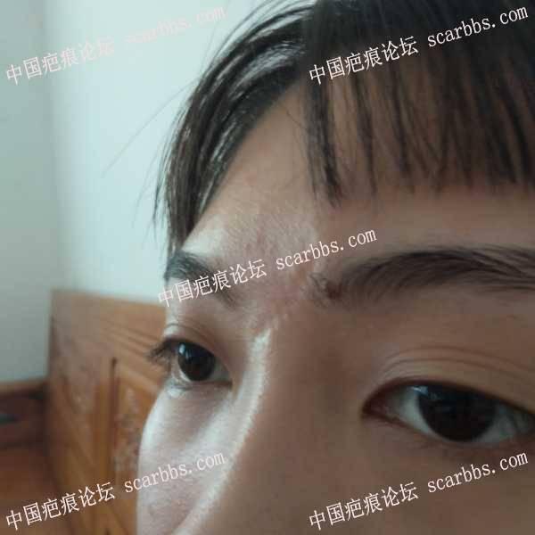 面部凹陷疤痕,适合做点阵激光吗?