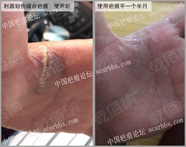 手掌虎口被铁钉划伤,坚持使用疤痕平一个半月,伤处近乎无恙。