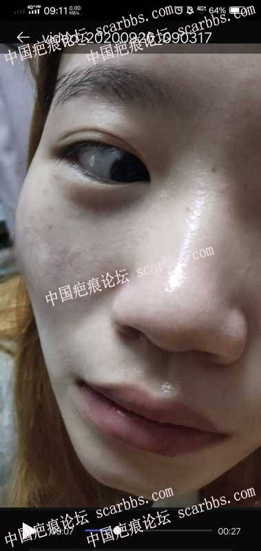 面部疤痕切除后色脱应该怎么办