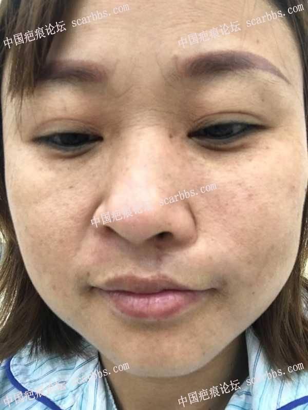 上唇及人中手术疤痕修复