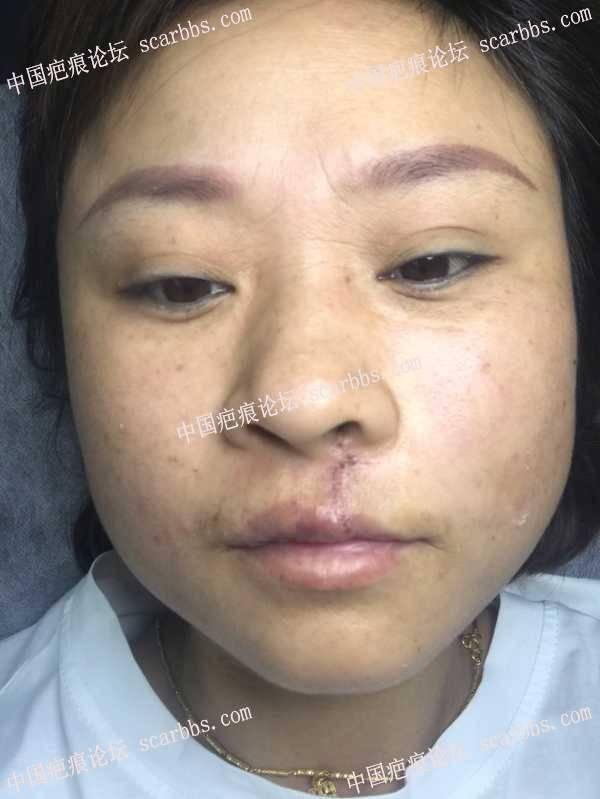 上唇及人中手术疤痕修复 人中疤痕,