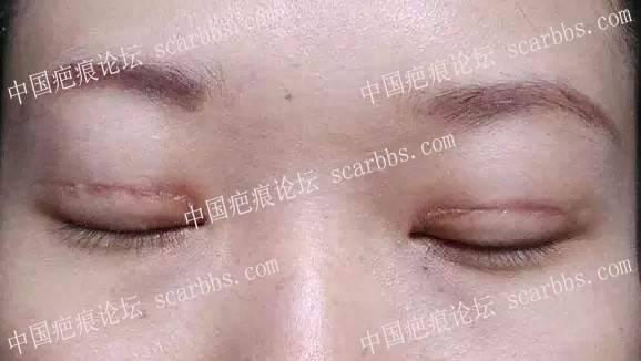 疤痕体质适合做整形手术吗?