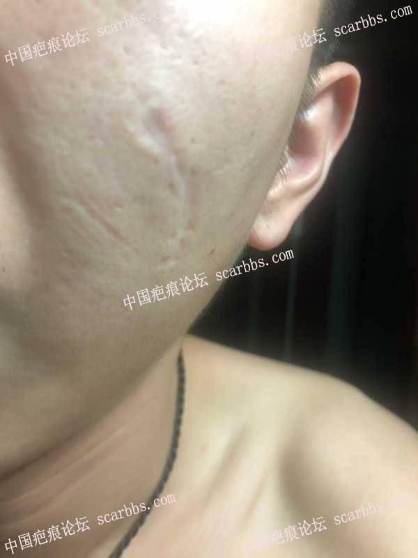 2020.9·30杨教授疤痕切缝恢复