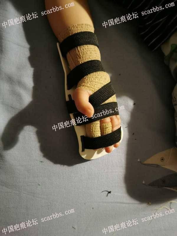 手部烫伤抗疤五个月了