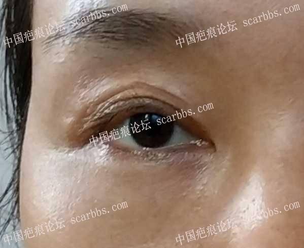 面部30多年老疤痕有得治吗
