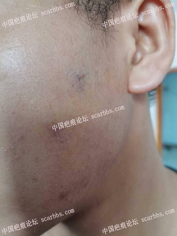在天津做的痘坑切缝,医生拆线后说掉痂再贴3 m? 对吗