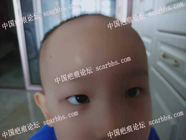 额头磕伤留下的白疤,怎么去除