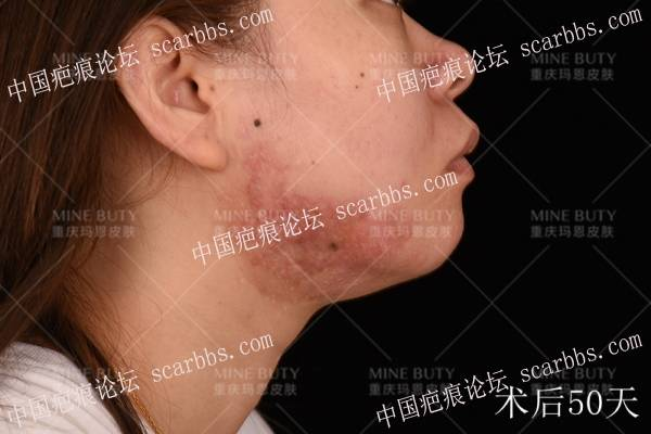 痤疮疤痕疙瘩发病原因及治疗方法(持续更新)