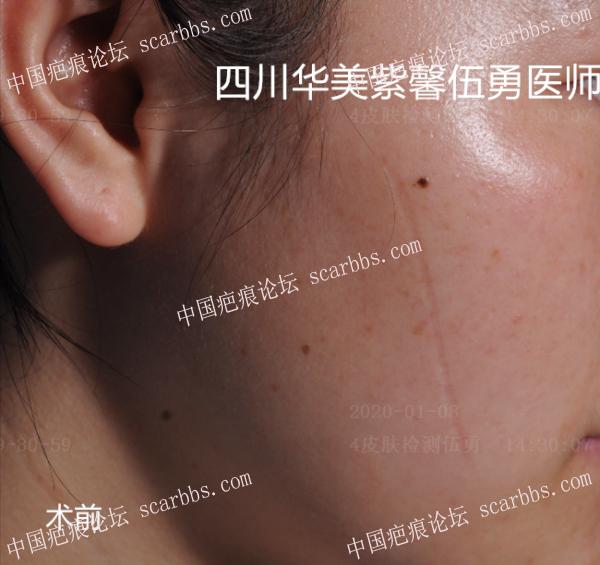 伍勇医生说的这几种常见疤痕类型!你是哪种?