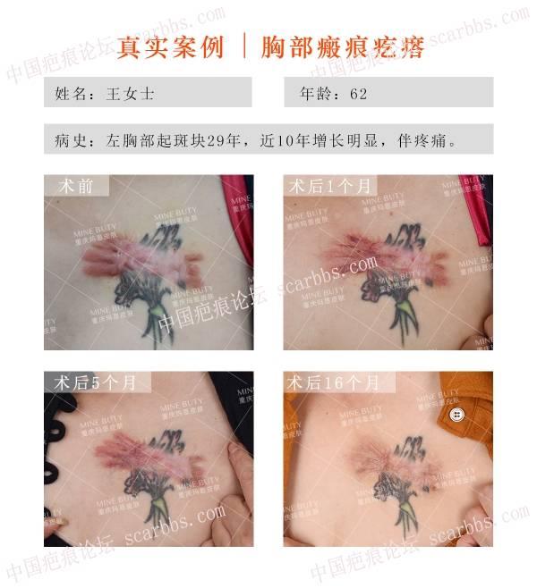 可以用纹身遮盖疤痕吗?