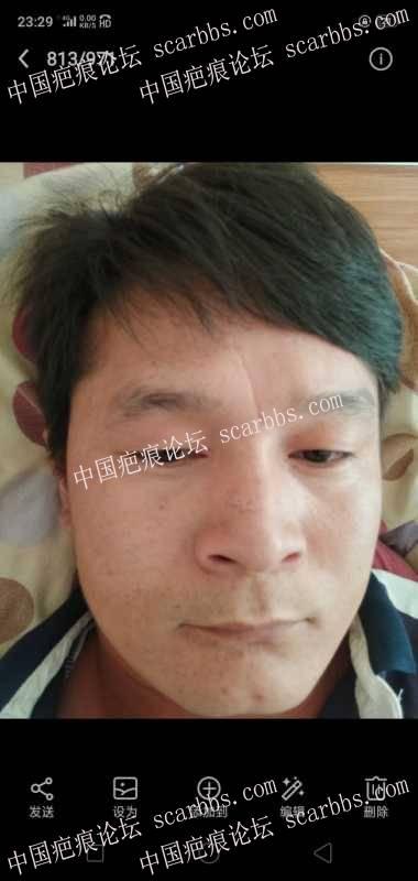 鼻子上和额头上疤痕,是做手术缝合,还是做填充?