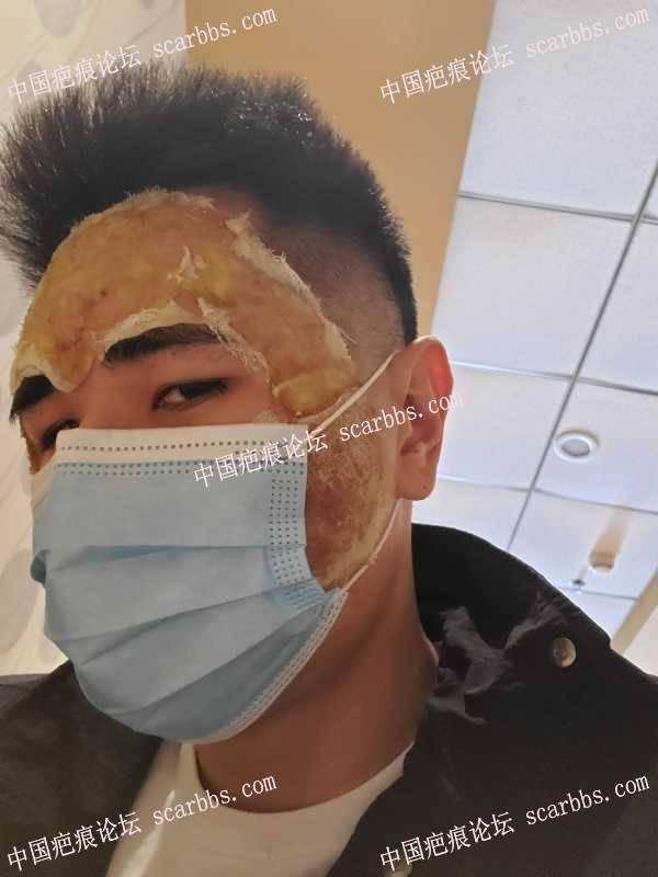切缝磨削填充治疗痘坑