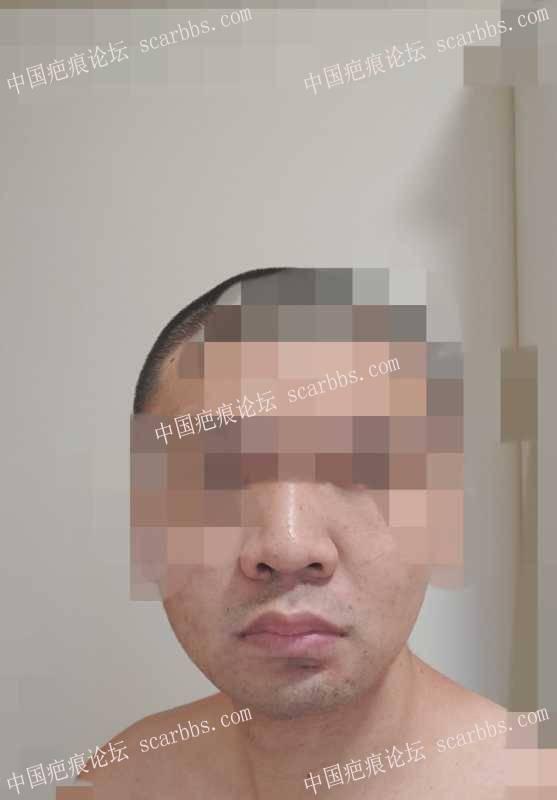 下巴美容缝合的手术疤痕