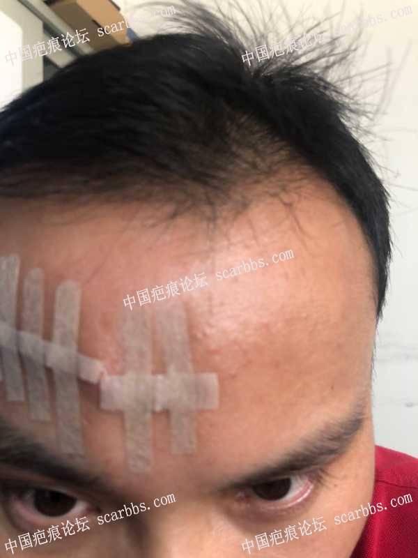 20200827额头疤痕做的切缝