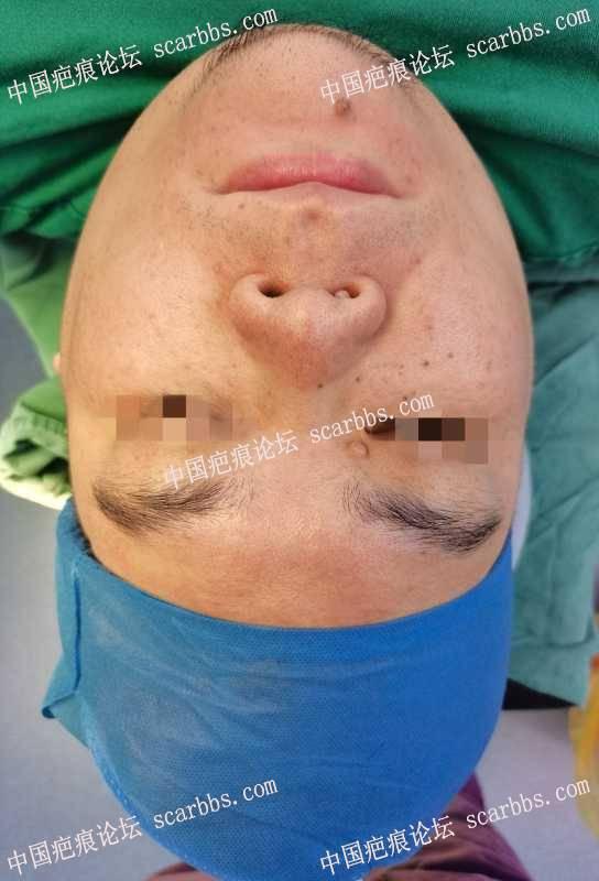 切除美容缝合修复一般不会留疤