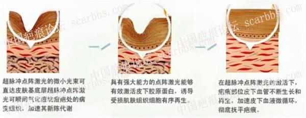 dianzhenjiguang301.jpg