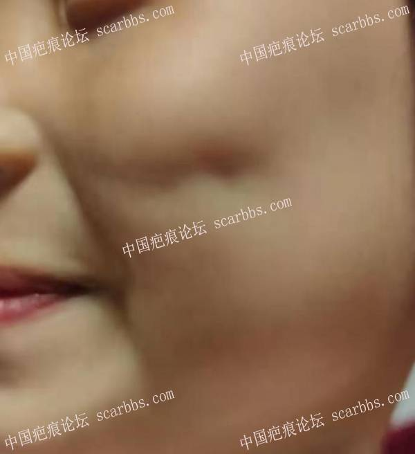 女孩左脸蛋磕伤一个月,凹陷明显,求助