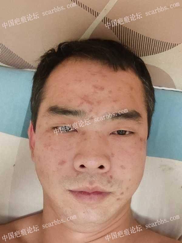 面部水痘坑切缝修复分享下经验