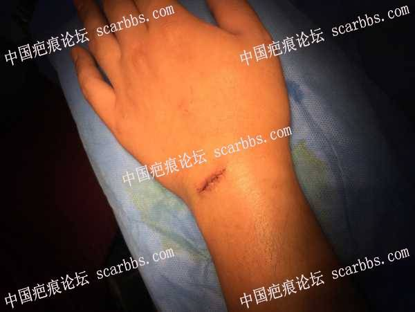 记录手腕部疤痕手术切缝