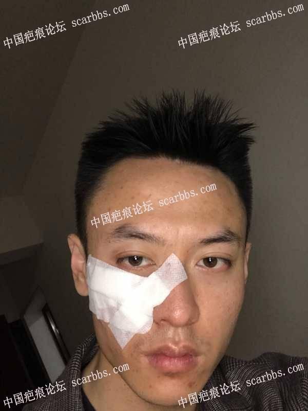 面部疤痕手术切除经验分享 面部疤痕,疤痕手术,疤痕切除