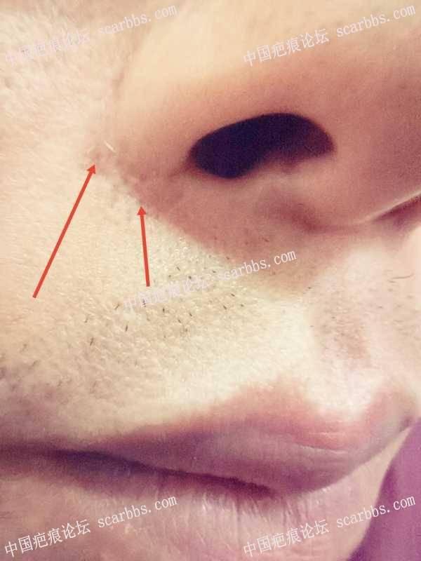 mctt对于细小的线性凹痕有用吗