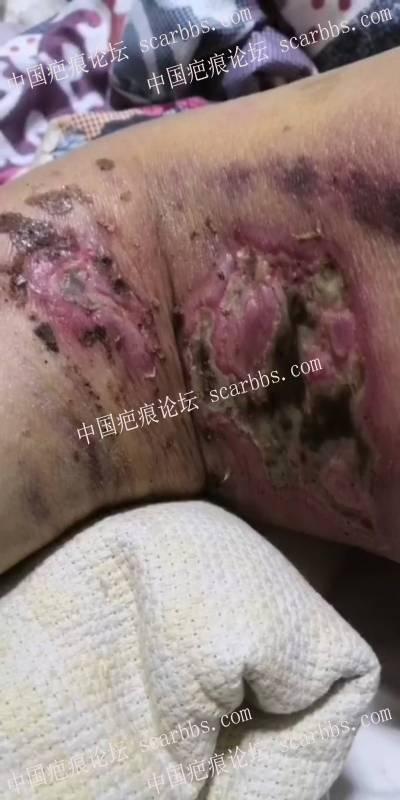 李高令2020年接治年老病人(青岛)