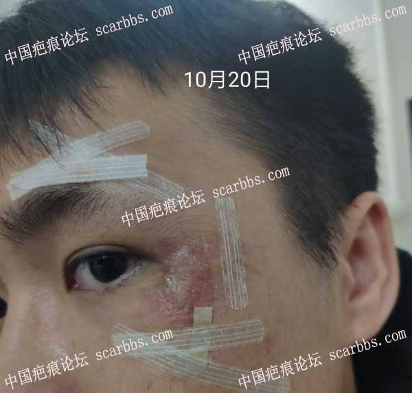 车祸后面部挫裂伤,眼角皮肤环形缝合应该怎么办?