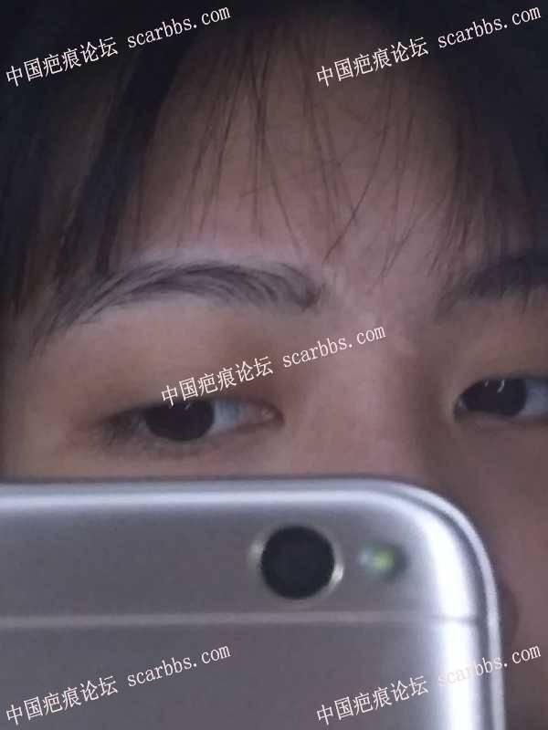 面部疤痕寻求祛疤方法