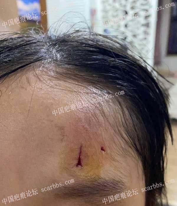 宝贝额头磕伤一个月了,后期该怎么继续护理
