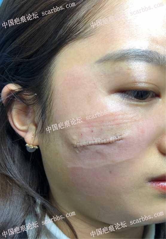 面部凹陷疤痕,今天才做完手术