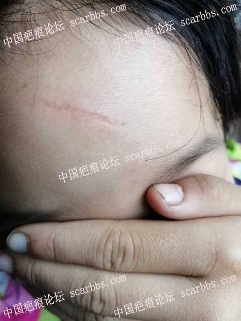 杨教授孩子额头外伤疤痕,怎么修复?