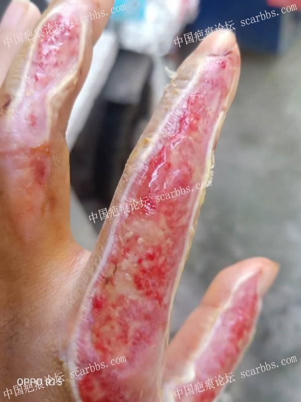 李高令2020年接治己接到植皮令手受伤的女患者(浙江金华)