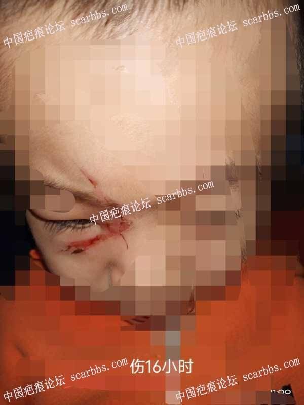 表皮被搓掉,眼睛下方的疤痕,最后会留什么样的疤痕哪?