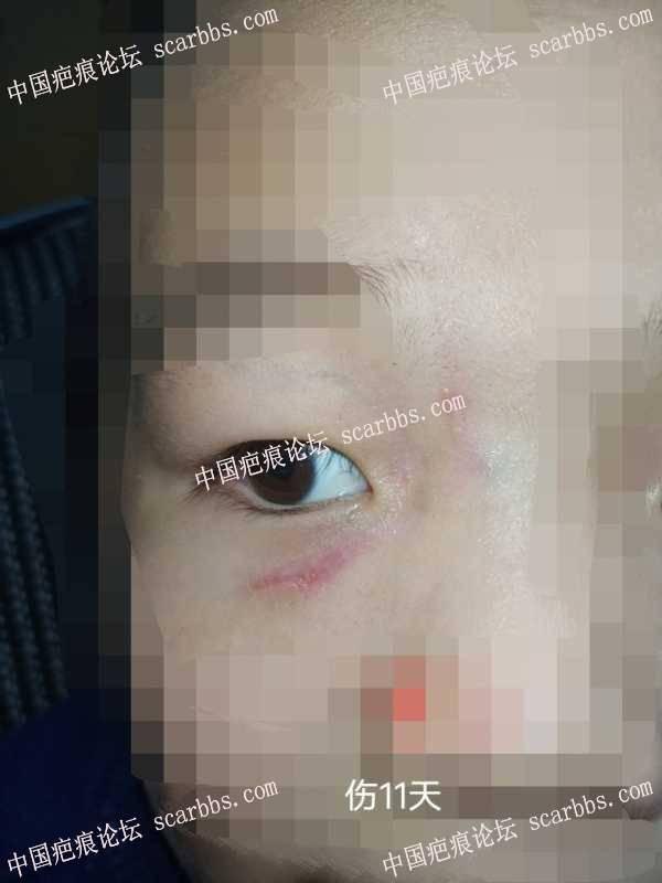 杨医生,您能给看看孩子的伤疤吗,论坛里相似的案例也很少,心里焦虑难安,求求您了