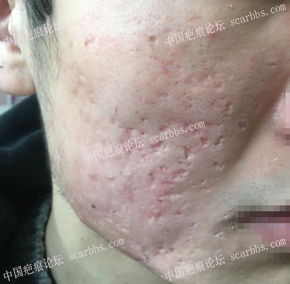 面部痘坑治疗