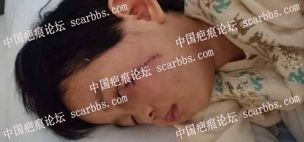 面部色素痣切除疤痕