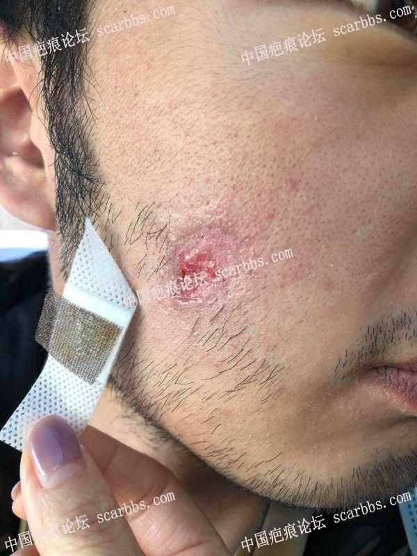 离子束打的太重形成疤痕。