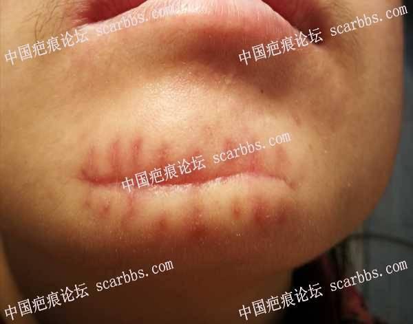 9.16日下颌疤痕切缝