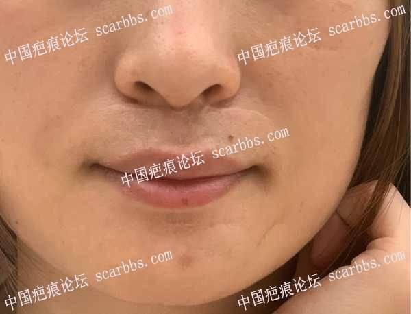 武晓莉人中疤痕切缝20201028手术
