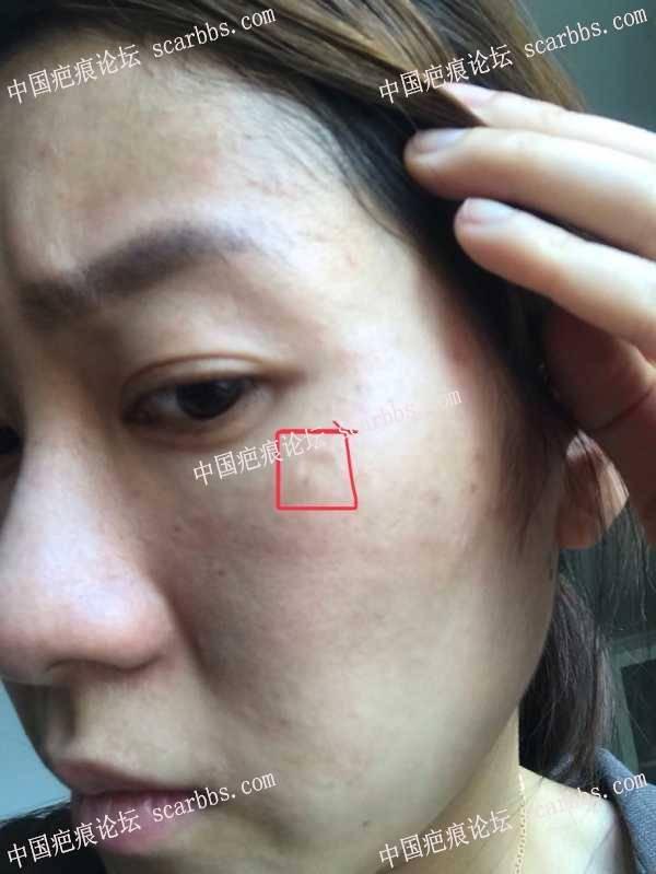 面部凹陷疤痕,九院刘伟切的,已经切了第二次了,希望有好结果