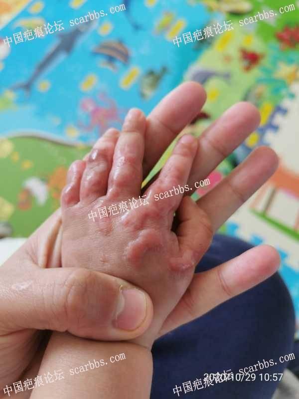宝宝手被粥烫完3个月,有什么好的祛疤方法吗