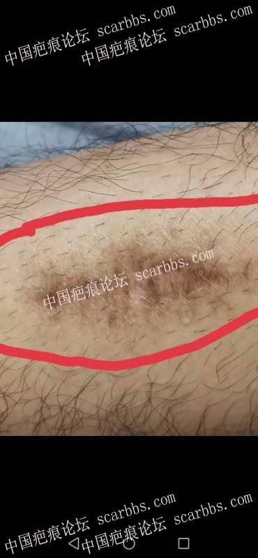 小腿两年前因磕伤做了切缝手术,现在仍然凹陷