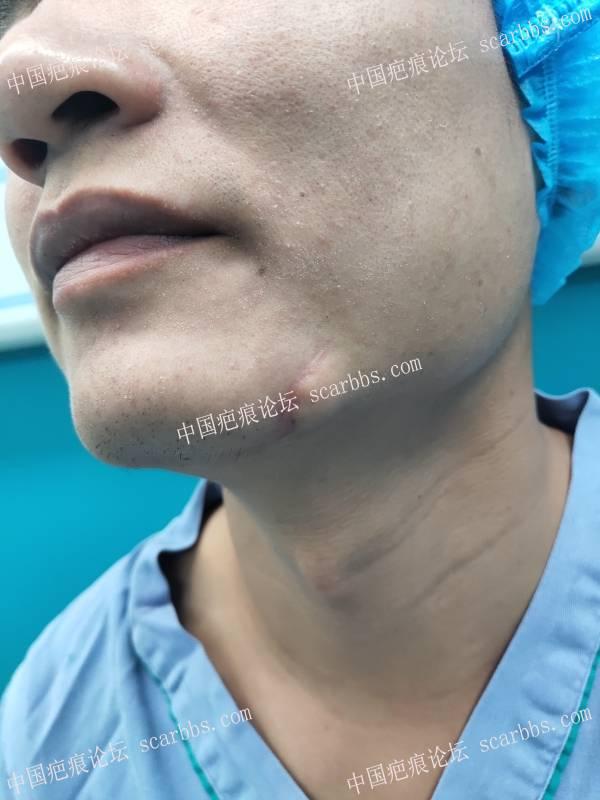 下巴严重的凹陷变形,术后恢复