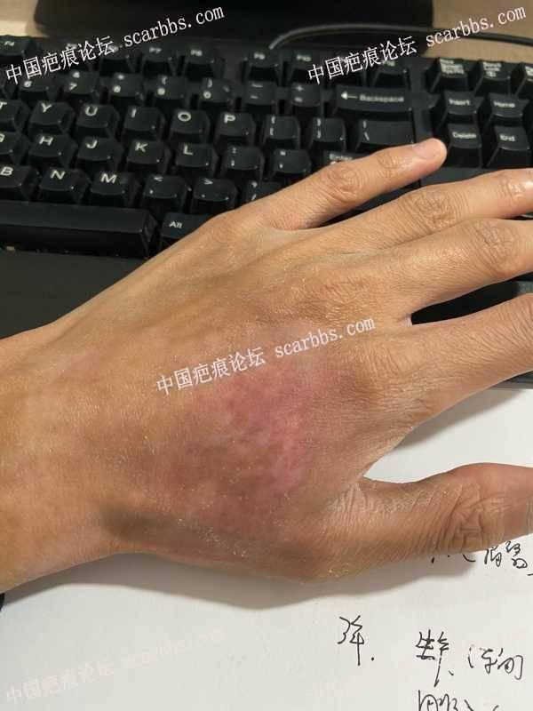 手臂被安全气囊烧伤会留疤痕吗