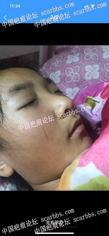 请杨教授看看宝宝脸部疤痕 现在12岁 想16岁找您修复