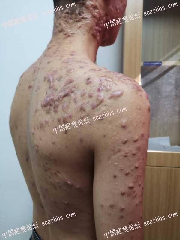 """这些疤痕""""冠军""""都在蔡景龙医美治疗"""