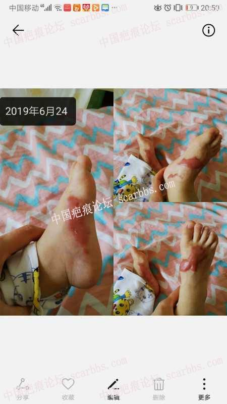 儿子烫伤快两年的疤痕,一直在护理