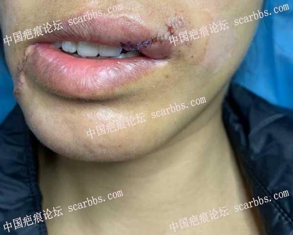 车祸疤痕,2020.11.05重庆,额头与嘴角切缝